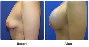 Corona del mar breast augmentation