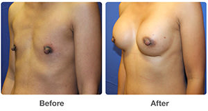 Breast Augmentation / Breast Enlargement