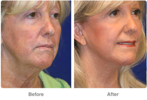 Neck Lift Rejuvenation Las Vegas